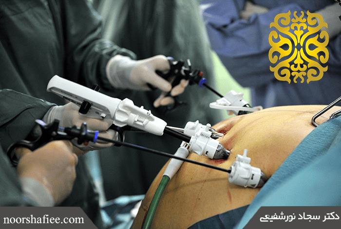 جراحی اسلیو مشهد , جراحی عمومی مشهد , جراحی عمومی , دکتر سجاد نورشیعی , فلوشیپ جراحی اندوسکوپیک و کم تهاجمی,جراحی لاپاراسکوپی مشهد,جراحی چاقی مشهد